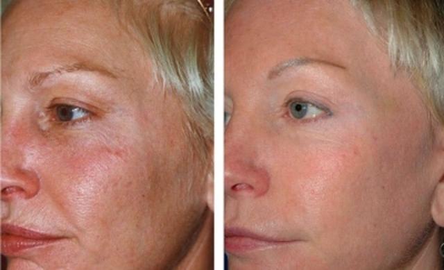 Фотоомоложение лица: как выглядит лицо до и после процедуры