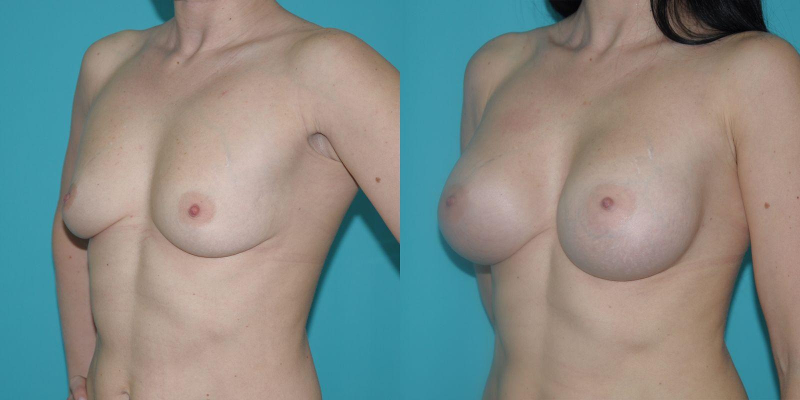 хирургия увеличение груди