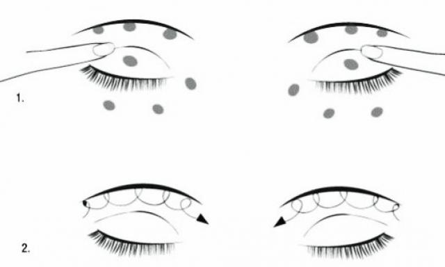 Темные круги и мешки под глазами причины и лечение