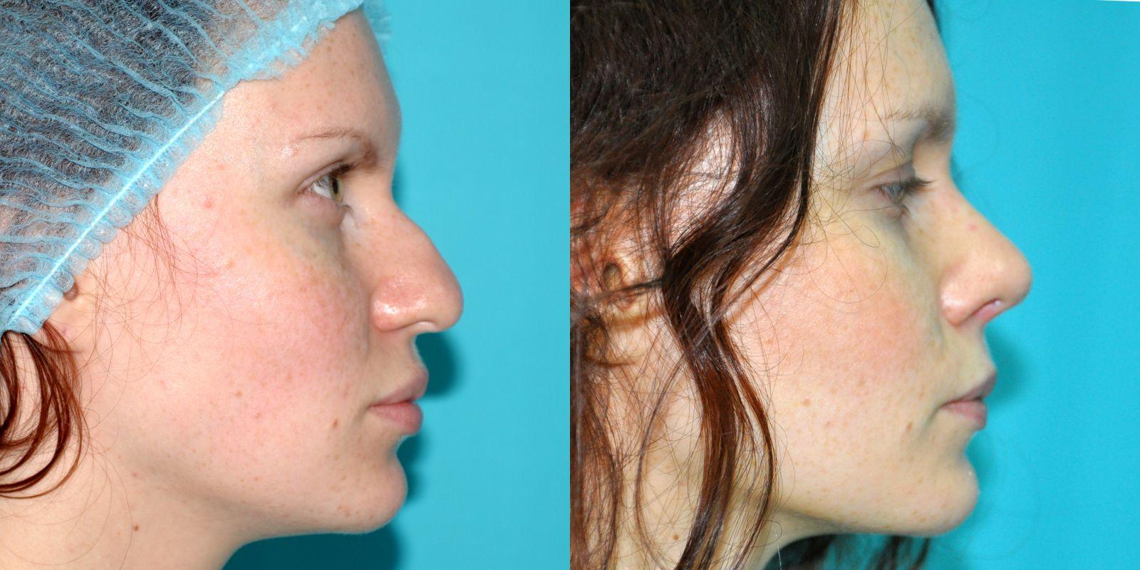 Пластическая операция на лицо картинки