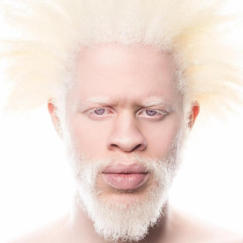 люди с альбинизмом
