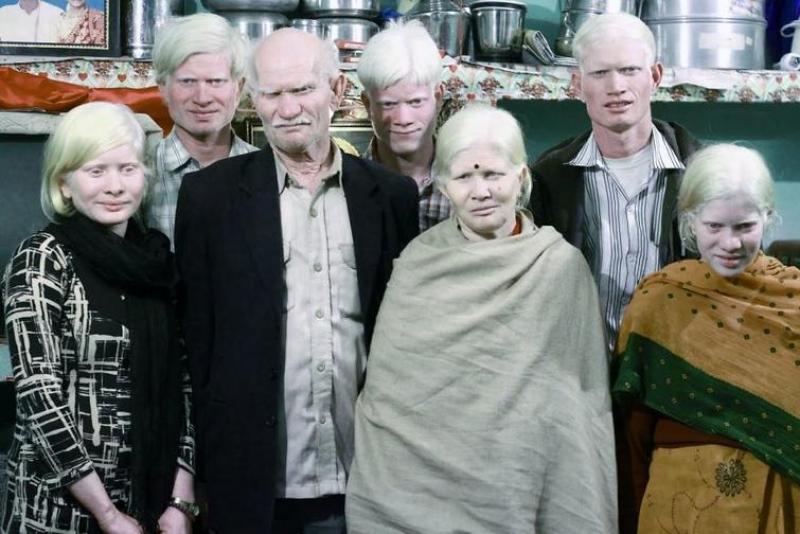 самая большая семья альбиносов в мире