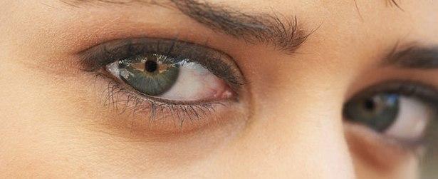 Как избавится от синяков под глазами