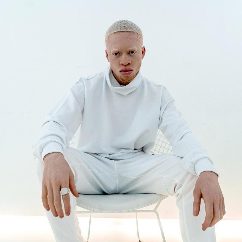 известые альбиносы