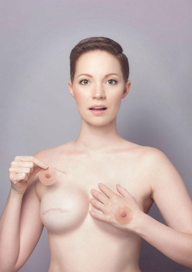 рак груди соски