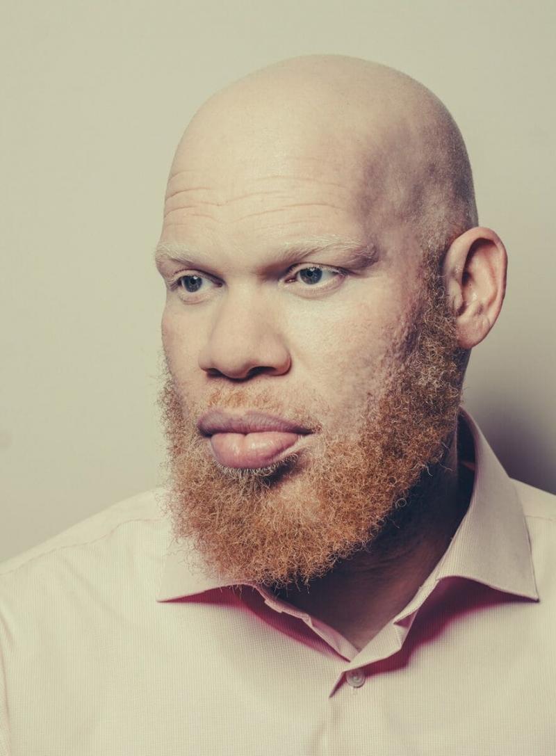день альбинизма 2019