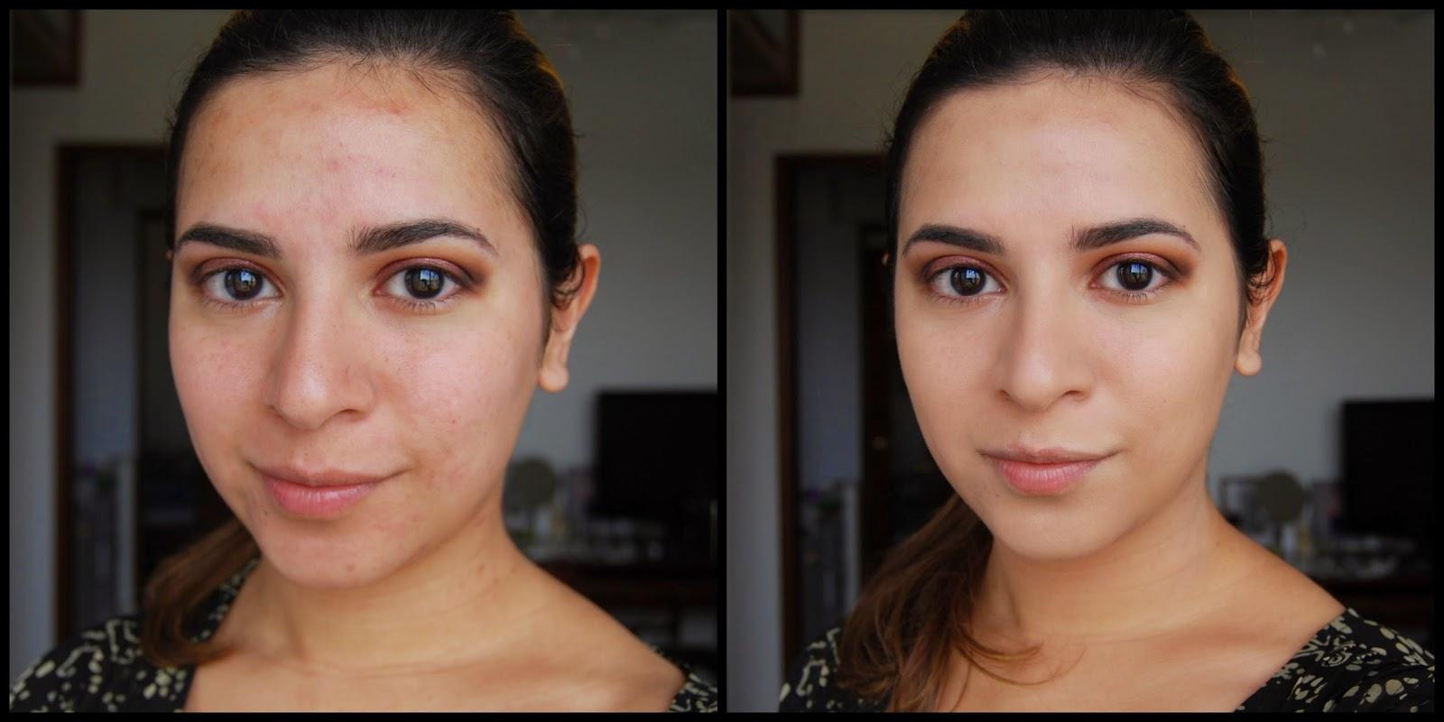 жирная кожа расширенные поры что делать Чистка лица «Комодекс» | Блог Агиделии