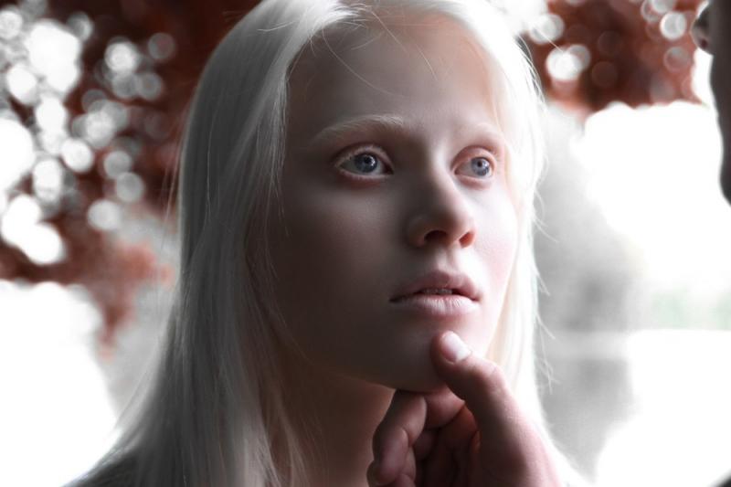 международный день альбинизма