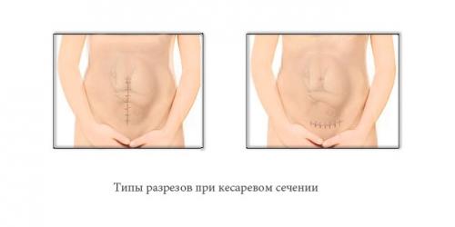 кесарево сечение разрез
