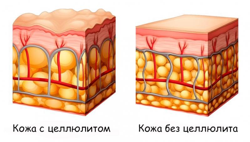 Как разрушить жировые клетки в домашних условиях