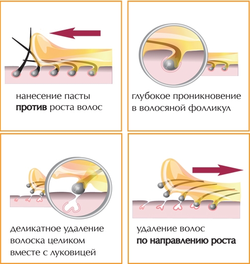 удаление волос сахаром в домашних условиях