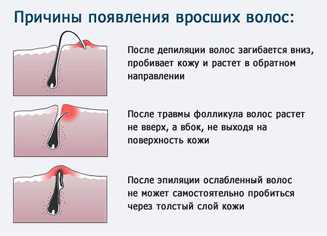 Почему растут волосы в паховой области