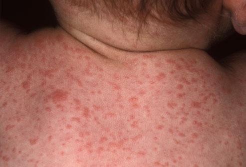 кожные заболевания у младенцев фото и описание