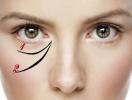 Азбука красоты: Гиалуроновая кислота