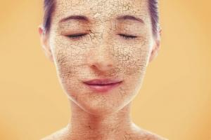 Как убрать сухость кожи