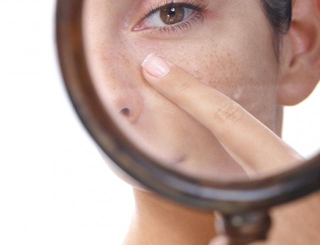 Расширенные поры на лице – 10 лучших рецептов