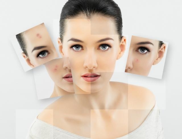 Жирная кожа лица, что делать Правильный уход убирает жирный блеск