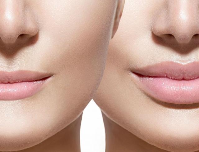Также сделает ваши губы более сексуальными