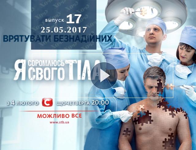 «Я соромлюсь свого тіла» 4 сезон: 17 выпуск от 25.05.2017 смотрите онлайн ВИДЕО