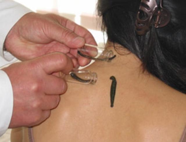 Современные методы хирургического лечения грыжи