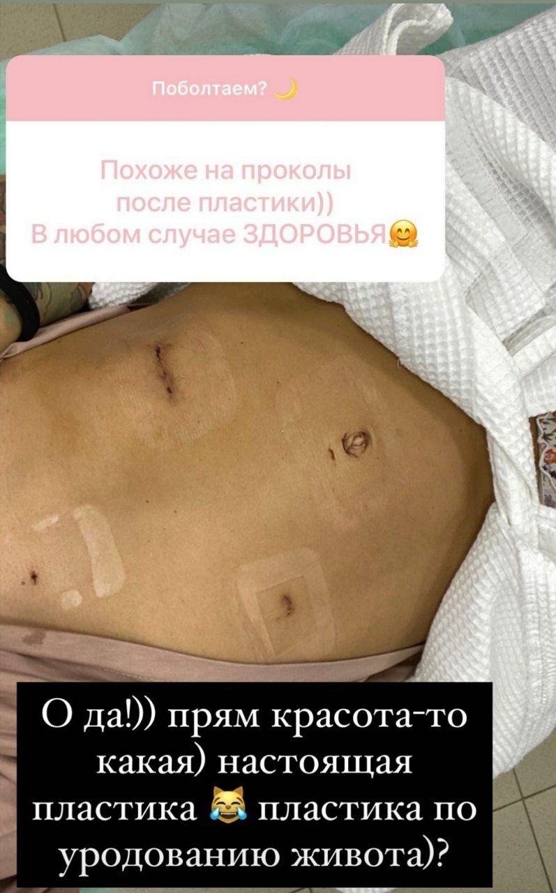 Айза Анохина грыжа пищевого отверстия диафрагмы