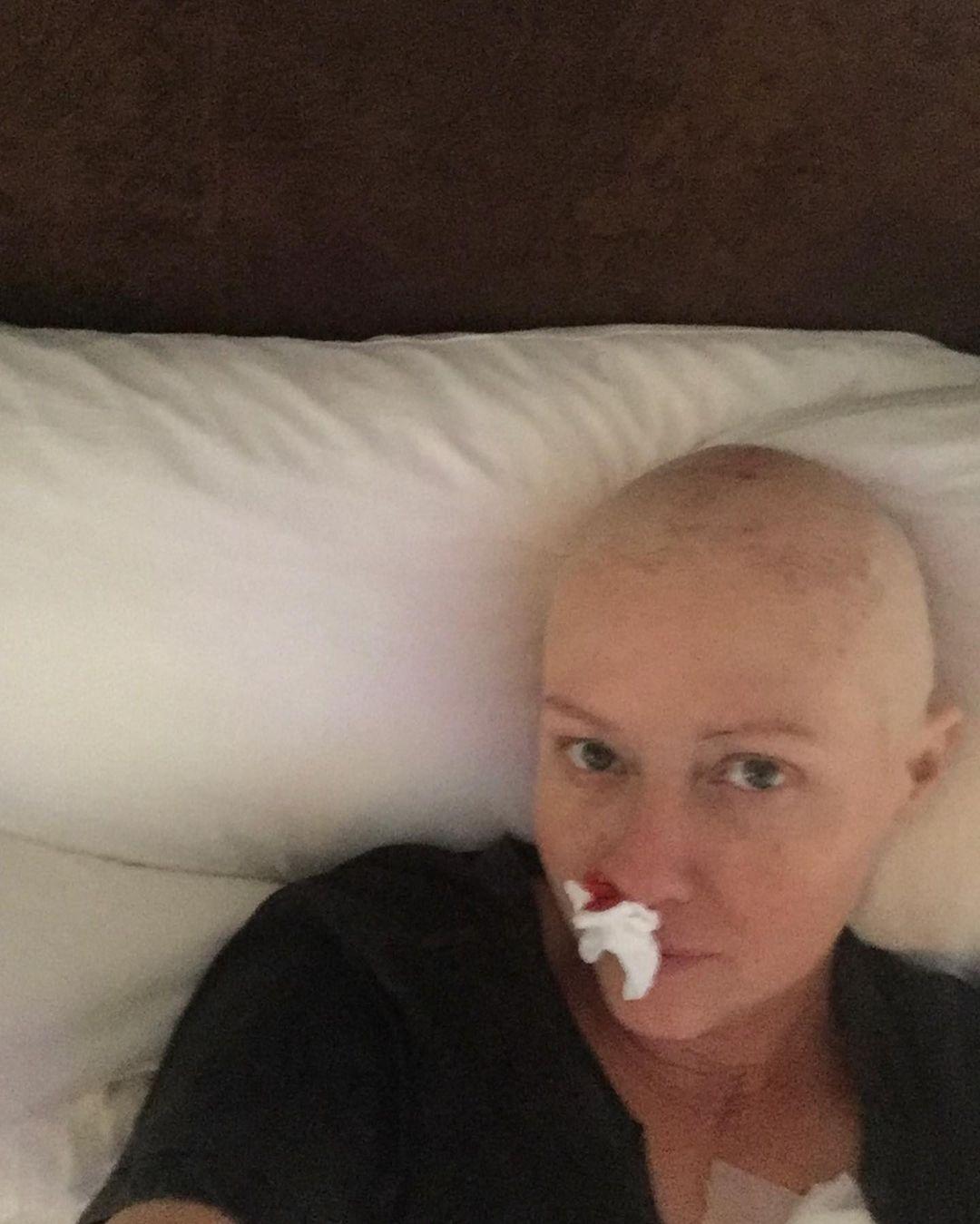 """Онкобольная звезда """"Зачарованных"""" Шэннен Доэрти поделилась душераздирающим фото после химиотерапии - фото №1"""