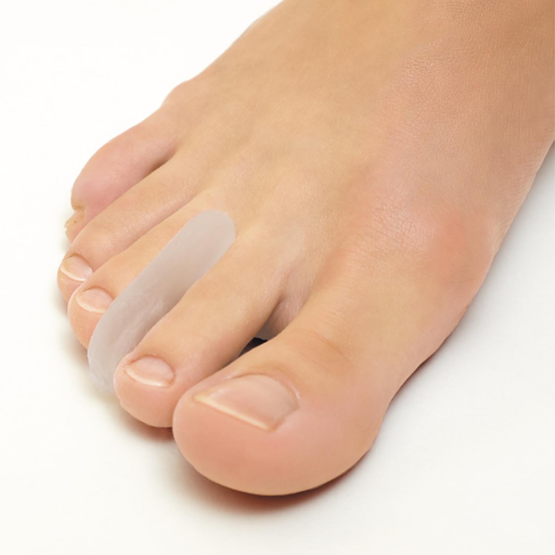 Ортопедические изделия для стопы: зачем нужны и как использовать - фото №3