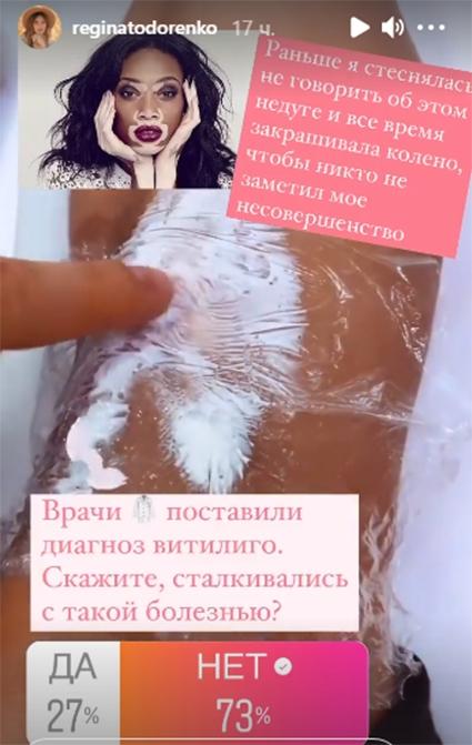 Регина Тодоренко призналась, что борется с неизлечимой болезнью - фото №3