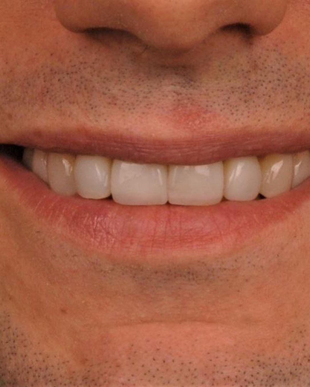 """Голливудская улыбка: Александр Эллерт сделал """"новые"""" зубы и показал результат - фото №3"""