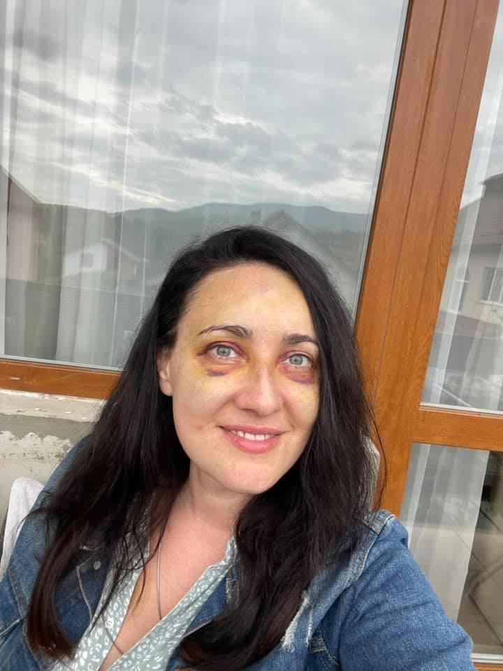 Синяки и ушибы: Соломия Витвицкая показала, как выглядит после жуткого ДТП (ФОТО) - фото №1