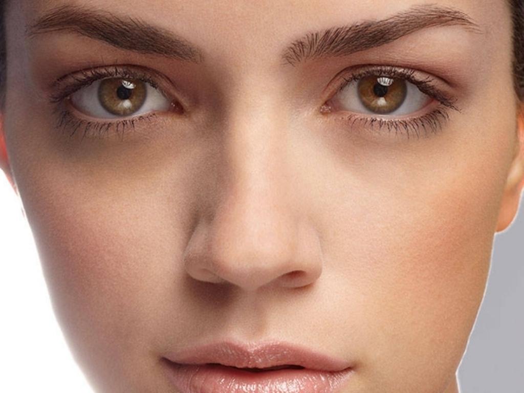 Темные круги вокруг глаз: причины их появления и как избавиться - фото №1