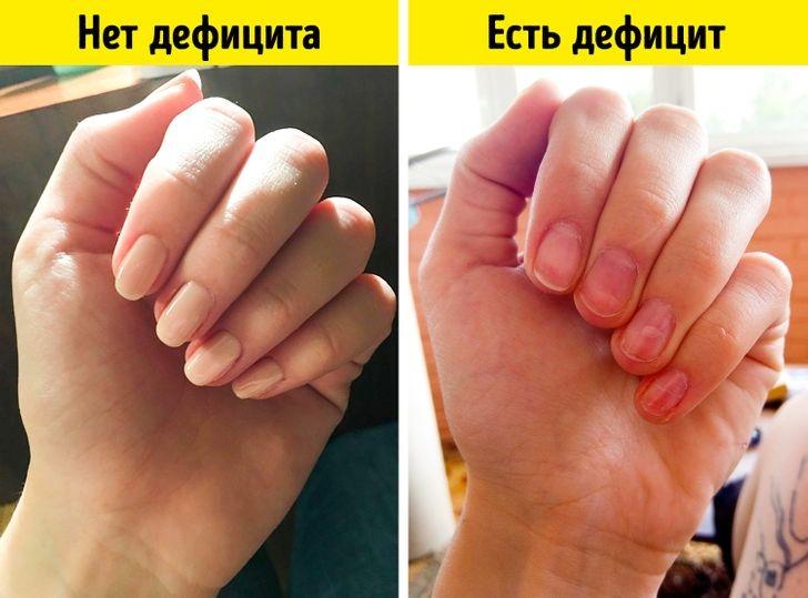 Черные полоски на ногтях: что это и как бороться? - фото №2
