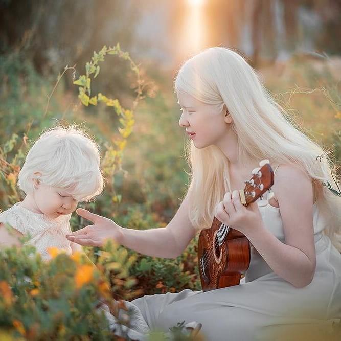 Неземные! Сестры-альбиносы из Казахстана стали востребованными моделями (ФОТО) - фото №7