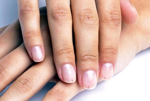 Черные полоски на ногтях: что это и как бороться? - фото №1