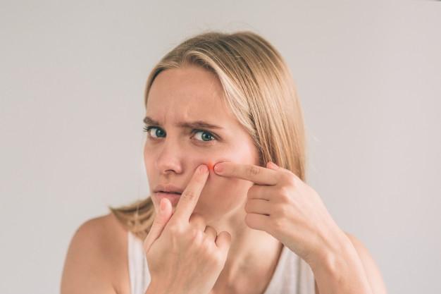 лечение угревой сыпи